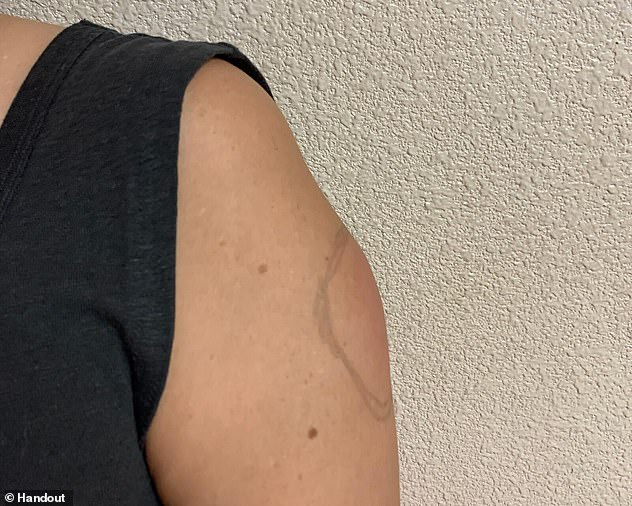 Moderna coronavirus vaccine leaves itchy and swollen skin/ red lumps on patient's arms 7 to 10 days after getting vaccinated(photos)