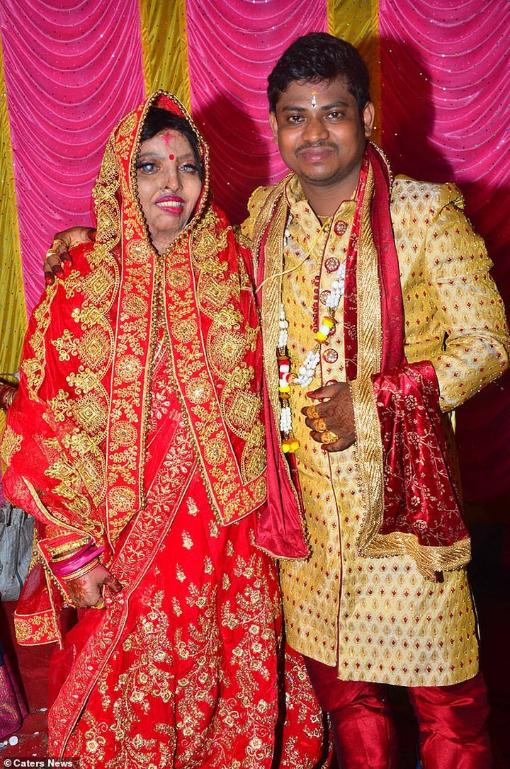 India: A woman who survived 'acid attack', marries a long-time friend (Photos)