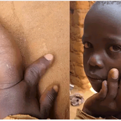 His mother abandoned him because of the size of his finger