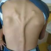 Découvrez cette maladie qui transforme le muscle en os, (photos).