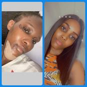 I Collapsed on March 1st 2020 and Broke My Jaws and Teeth, 1 Year After, See How I Now Look - Lady
