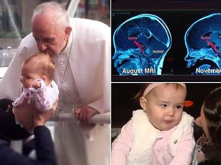 Years Ago Pope Francis Kissed A Baby On The Head, This Is What Her Parents Realized