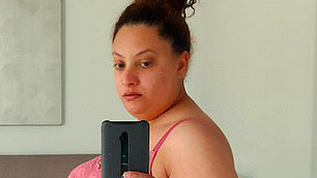 Food addict drops eight dress sizes after removing 75% of her stomach in £10k op