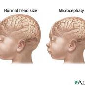 Microcephaly a Rare Condition That Affects Infants