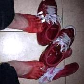 See what happened to this guy's feet after wearing this shoe which made people to react (photos)