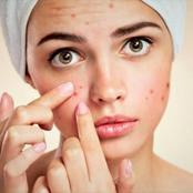 8 Things you might be doing, that causes pimples on your face