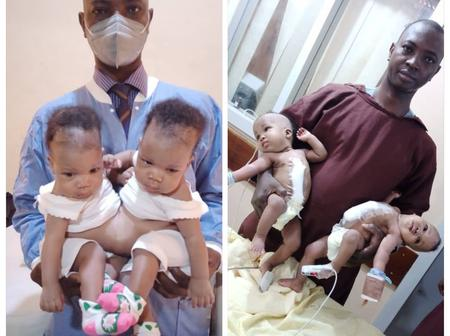 See Photos Of The Conjoined Female Twins Separated At The University Of Ilorin Teaching Hospital