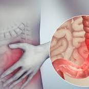 Intestine Disease Is Deadly: Ignore The Excessive Intake Of These 5 Things For You To Live Long