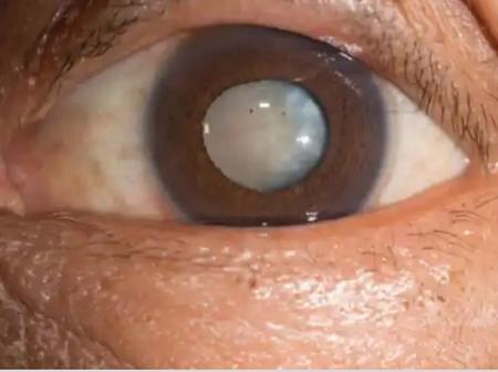 See medicinal and traditional control to cataract formation in adults