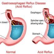 Foods To Avoid and Foods To Use When You Are Suffering From GastroEsophageal Reflux Disease(GERD)