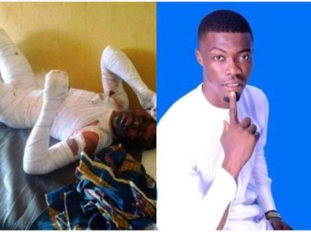 Update: Lover boy set ablaze by Benue 18-year-old girlfriend dies