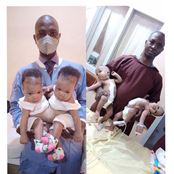 Female Conjoined Twins Successfully Separated in UITH, Kwara State, Nigeria.