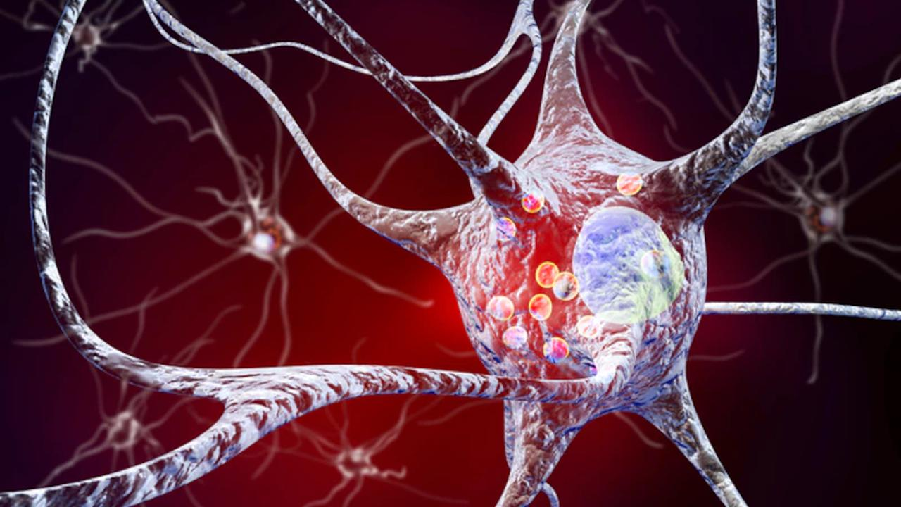 Parkinson kündigt sich Jahre vorher an: Auf diese Warnzeichen müssen Sie achten