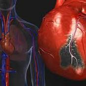 Early Warning Sign For Heart Disease