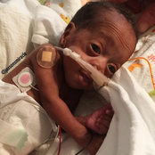 Doctors Said He Would Die Because He Was Born In 5 Months, But God Intervened