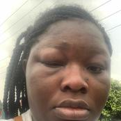 Lady laments after she was beaten up by a driver in Lagos