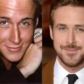 Four Well Known Male Celebrities You Probably Didn't Know Had Plastic Surgery, Check Them Out