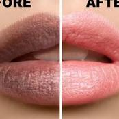How I Got Pink Lips Naturally And With Ease