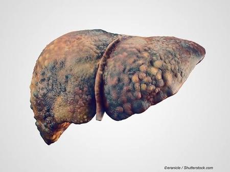 Hepatitis B and the liver: New method shows successful suppression of chronic virus.