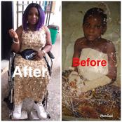 My Family And Friends Wished Me Dead After I Became Disabled -Lady