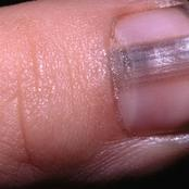 What your nails say about your health (photos)