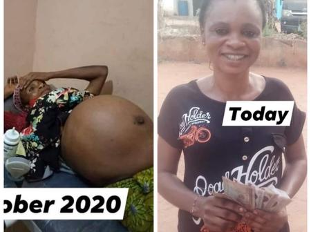 A Lady That Carried Fibroid For 21 Years Finally Had A Surgery After Receiving Assistance