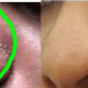 This Is Why You Have Those Whiteheads On Your Nose