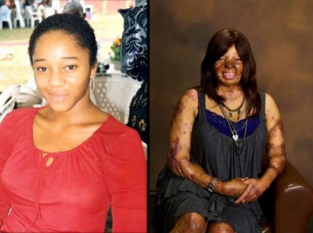 Check Out The New Look Of A Lady Who Survive Sosoliso Plane Crash In Some Years Back