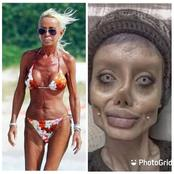 Check Out Pictures Of People Who Did Surgery To Change The Way They Look (Photos)