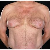 What Are The Symptoms, Causes And Treatment Of Male's Menopause?