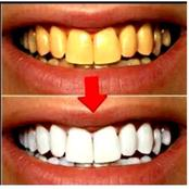 Traditional Method of Whitening Yellow Teeth