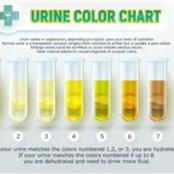 Read this article to know the meaning of your urine color.
