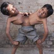 Meet Conjoined Twins who Are Joined By The Stomach And Run To School Like A Spider!