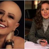 « البقاء للأصلع » .. قصة المذيعة التي داعبها عمرو اديب على الهواء بعد اصابتها بالسرطان