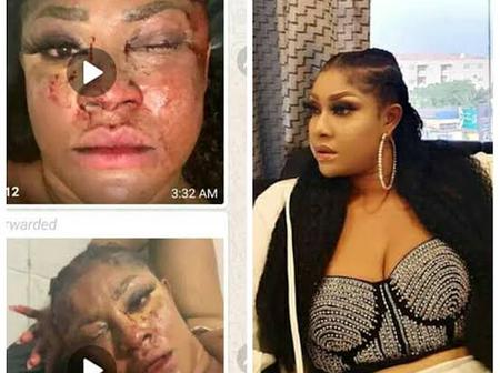 After 10 Bullets Were Removed From Her Head Years Ago, See How Actress Angela Looks Recently