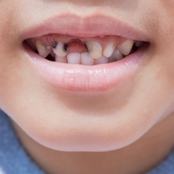 Foods to Avoid That May Cause Teeth Cavity