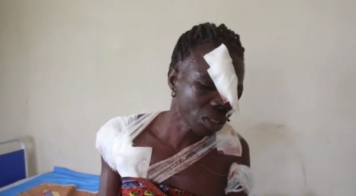 2728aa899d5e4800a2f4547497c68570?quality=uhq&resize=720 - Woman Sustain Several Cutlass Wounds After Her Husband Slashes Her Over Farmland