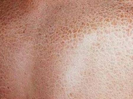 See 9 Home Remedies To Get Rid Of Dry, Rough And Itchy Skin