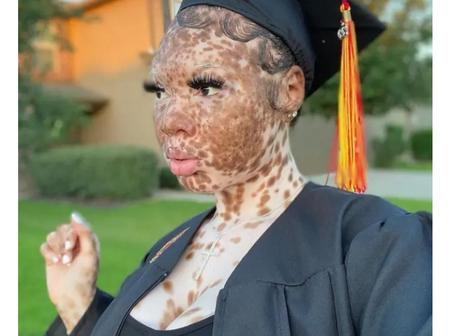 Despite My Skin Condition ;It Did Not Hinder Me From Success And Slaying -Says Princess Micah