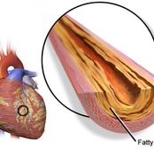 The cause of Coronary artery disease YOU shouldn't ignore