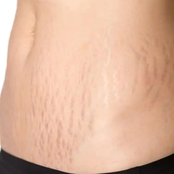 Stretch marks, Causes And How You Can Get Rid Of Them
