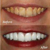 How to whiten your teeth using charcoal.
