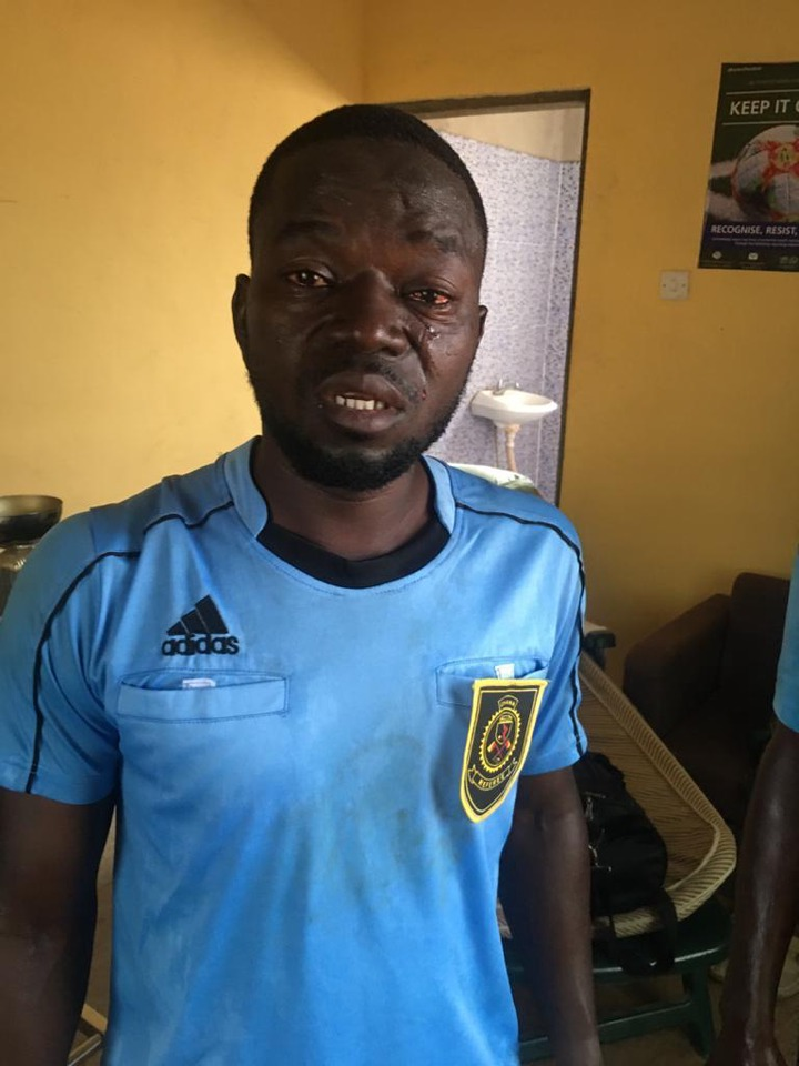 Angry fans beat up match officials with center referee losing some of his teeth in Ghana division one league match (photos)