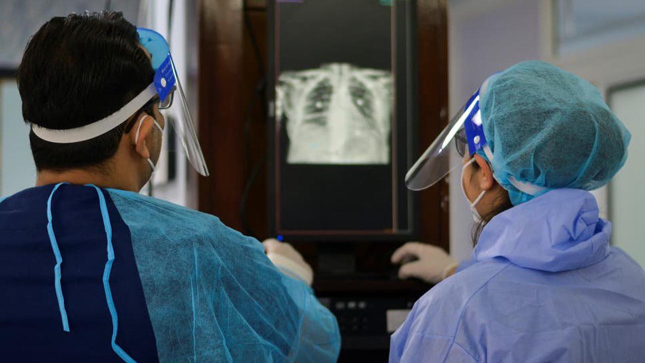 Covid-19 patient receives world's first living donor lung transplant