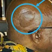 The Peculiar Thing On the Head Of Jacob Zuma, While He Was Conversing with Pastor Bheki-Man Uncovers