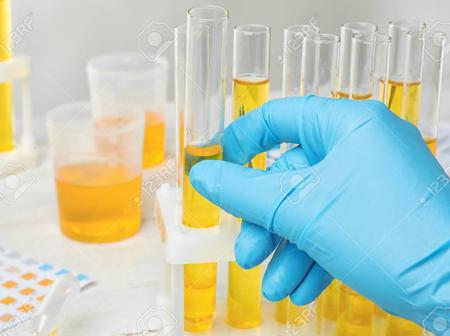 What Your Urine Color Tells You About The Health Of Your Kidney