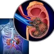 Kidney Cancer Kill Fast: Avoild Excess Intake Of These 3 Things If You Want To Live Long