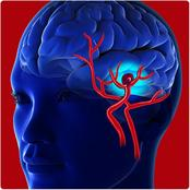 Brain Aneurysm, Types And Symptom