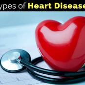 OPINION:Tips To Prevent Heart Disease