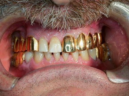 Hole Tooth Extraction All News Pictures Videos Opera News